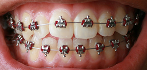 What does Facial Symmetry have to do with Orthodontia?