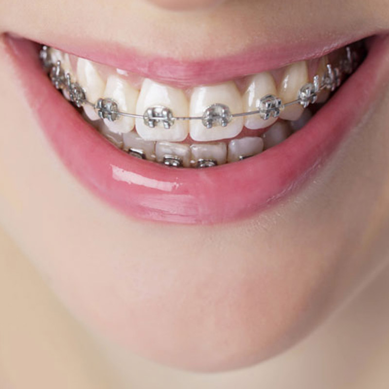 Smile Today Braces and Orthodontics Dentistry Treatment
