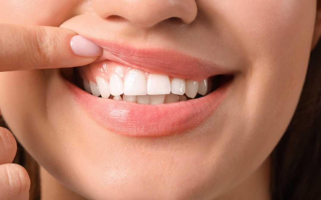 5 Signs Your Gums Need Help
