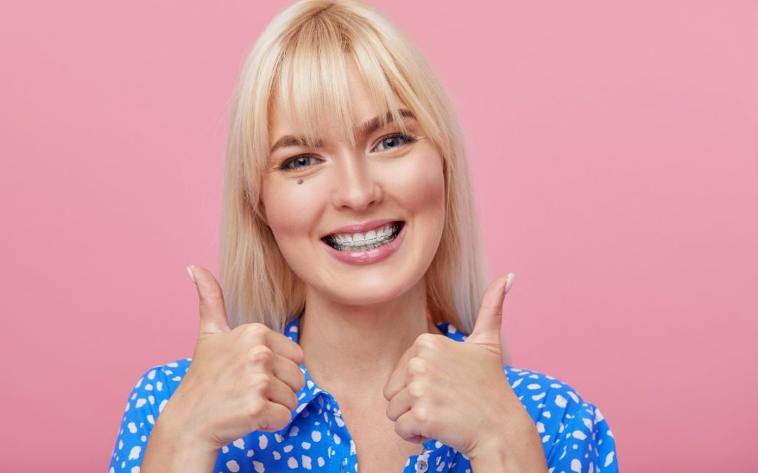 What You Need to Know About Nickel-free Braces